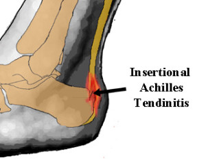 insertional-achilles-tendinitis