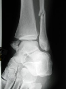 This ankle fracture is unstable because the ligament on the inside of the ankle no longer function due to the fracture of the tibia (left) and the ligaments that bind the tibia to the fibula are torn.