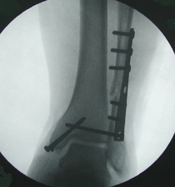 Ankle fractures associated with ligament injury substantial enough to affect the alignment of the ankle generally require fixation with orthopedic hardware.