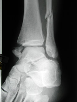 Ankle Fracture | Whole foot
