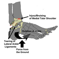 The ankle sprain usually involves a rolling or eversion of the ankle which may injure other structures besides the ankle ligaments.
