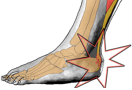 What Tennis Shoes To Buy For Achilles Tendonitis