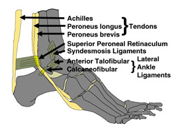 "The ligaments most often involved in ankle sprains are the anterior talofibular and calcaneofibular ligaments.  The syndesmosis ligaments are involved in an ankle sprain variant often called ""the high ankle sprain""."