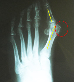 A bunion occurs when the metatarsal bone and phalanges of the big to drift out of alignment (yellow bars) and make the end of the proximal phalanx prominent (red circle).